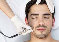 Dual Action Microdermabrasion