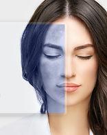Dark spots, freckles,hyperpigmentation(m