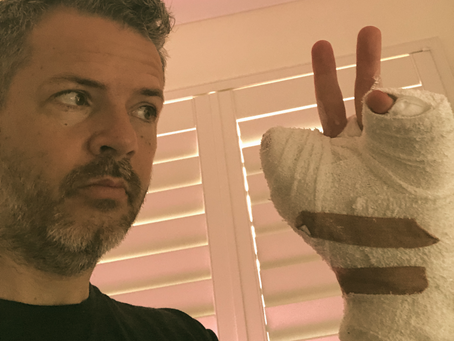 Hand Update