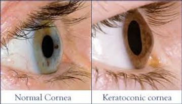 Keratoconic and Normal Eyes That Need Contact Lens Services in Bellmore, NY