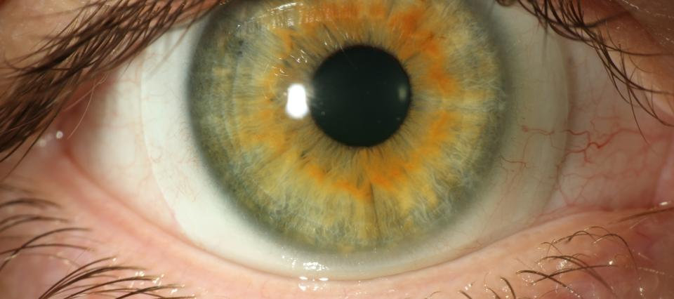 scleral lens picture.jpg