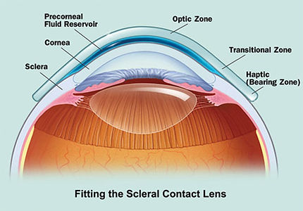 Scleral Contact Lens
