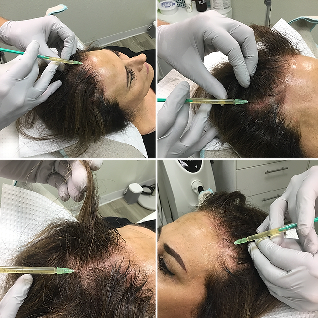 PRP for hair restoration.png