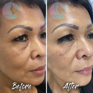 Treatment: Tear trough dermal filler Results: Immediate and lasting 12-24 months Social down time: None Procedure details: HA dermal filler placed by blunt tip cannula Pain involved: Minimal to none National average cost: $700+ per syringe (1-2 syringes needed) SDIM & Spa cost: $650 per syringe Note: Individual results may vary