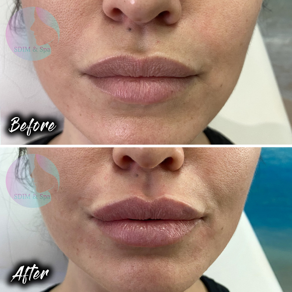 Treatment: Lip dermal filler Results: Immediate and lasting 12 months Social down time: None Procedure details: HA dermal filler Pain involved: Minimal to none National average cost: $700+ per syringe (1-2 syringes needed) SDIM & Spa cost: $685 per syringe Note: Individual results may vary