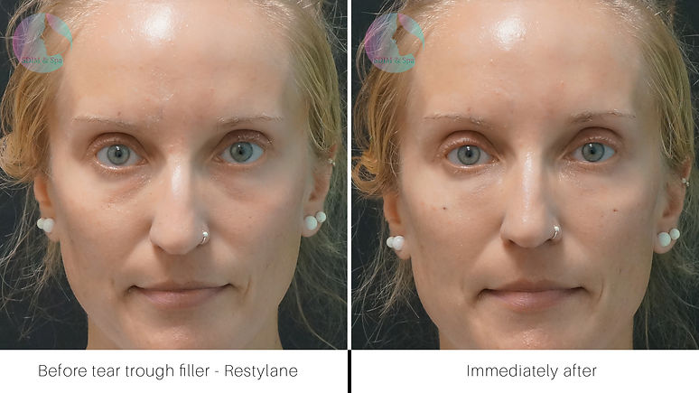 Tear trough filler - Restylane.jpg