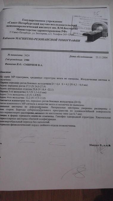 неврологический диагноз Смирнова 5(Ивано