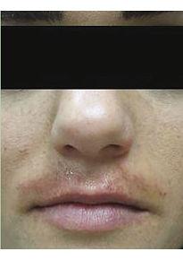 VP Before-melasma-upper-lip-min.jpg
