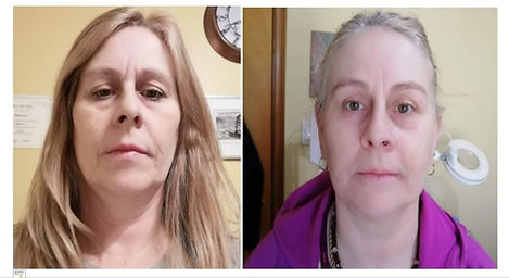 dolphin-Face-Before-After-skin-rejuvenat