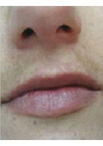 VP After-no-pigmentation-upper-lipmin.jp