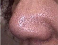 before-skin-rejuvenation-large-pors-nose