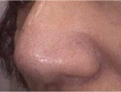 after-skin-rejuvenation-less-pores-nosem