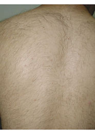 Hair-Reduction-After-male-less-hairy-bac