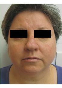VP After-rosacea-face-min.jpg