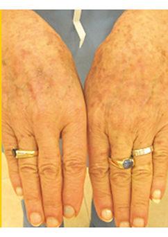 Skin-Rejuvenation-After-less-sun-spots-o