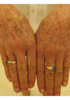 Skin-Rejuvenation-Before-sun-spots-hand-