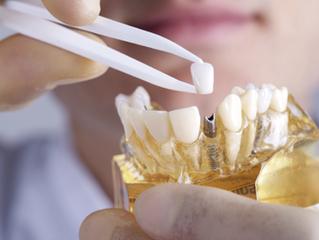 Quais os principais benefícios do protocolo sobre implantes?