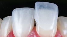Lentes de contato dentais: já ouviu falar?
