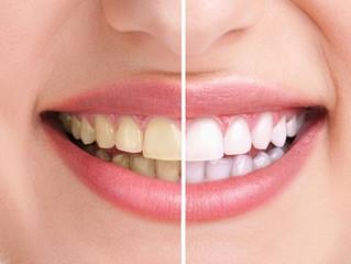 Especialista revela quais alimentos escurecem os dentes e como recuperar cor natural do sorriso