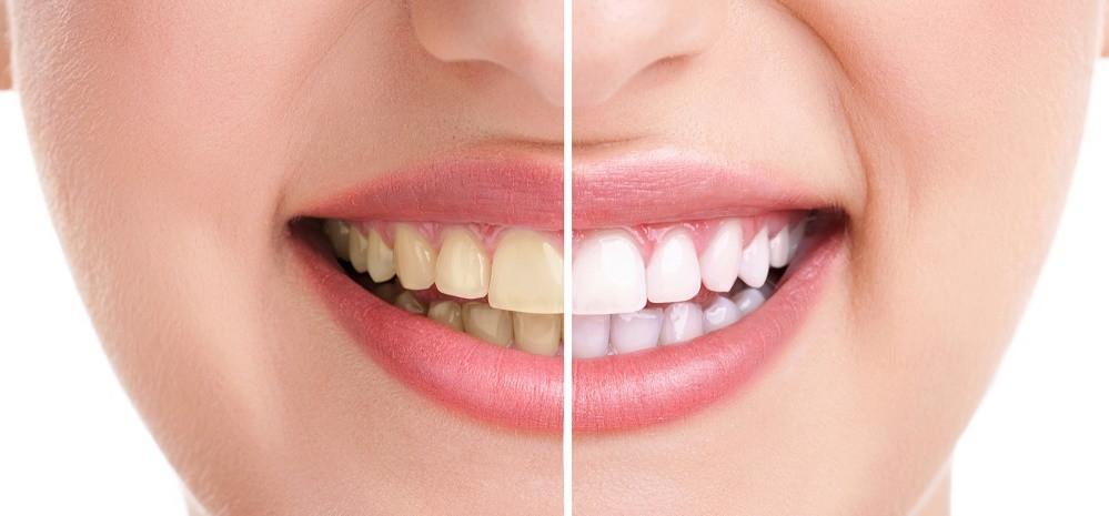 O clareamento dental pode recuperar a coloração dos dentes