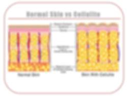 diagram - normal vs cellulite.jpg