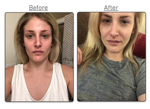 CBD Skincare ProductsFollow Up