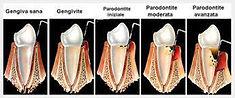 terapia conservativa Arona, dentista Arona