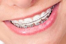 ortodontista Arona