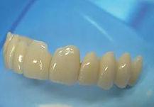 protesi dentali Arona, dentista Arona