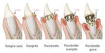 parodontologia Arona, cura piorrea Arona