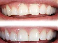 estetica dentale Arona, dentista Arona