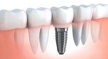 implantologia Arona, dentista Arona