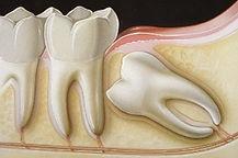 chirurgia orale Arona, dentista Arona