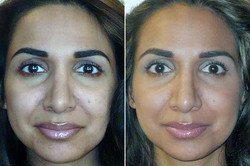 grace-gold-before-after-checmical-peel.jpg