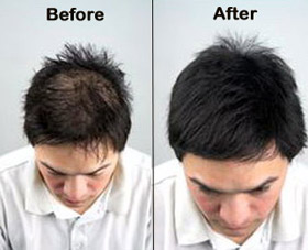 hair-loss-clinic-jubilee-hills-hyderabad-before-after.jpg