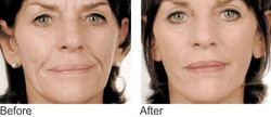 Mesotherapy face 1.jpg