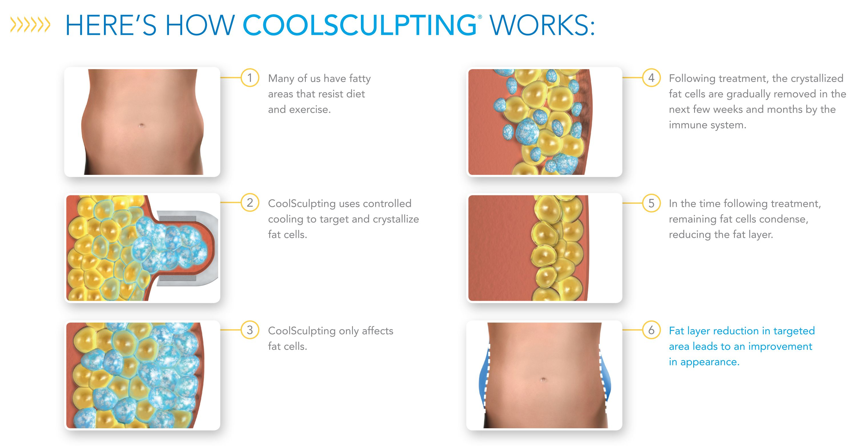 How-CoolSculpting-Works.jpg