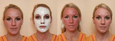 chemical-peel-before-after (1).jpg