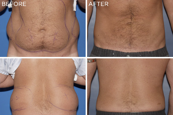 ba-liposuction02.jpg