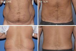 ba-liposuction02.jpg