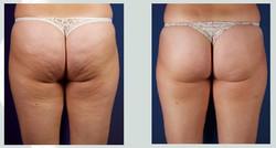Cavitation-Buttocks-and-Thighs-01.jpg