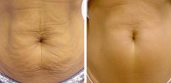 thermage tummy 2.jpg