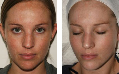chemical-peel-before-after.jpg