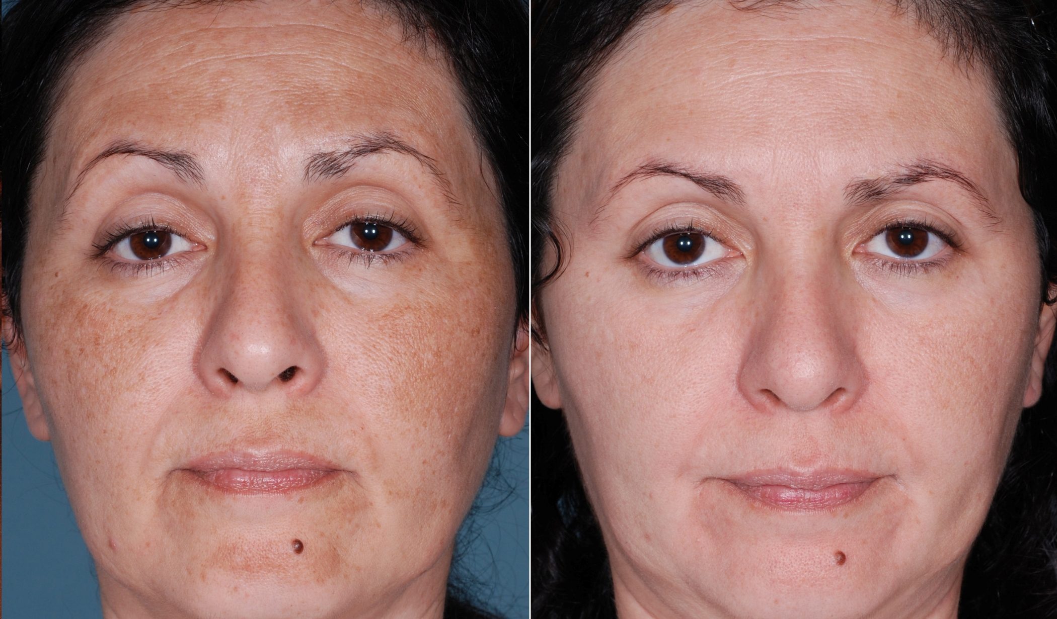 chemical-peel-3.jpg