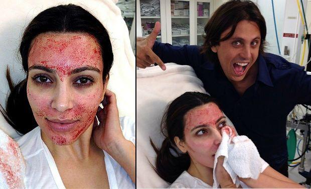 Kim Kardashian's Vampire Lift