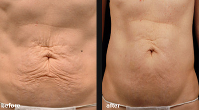Thermage$20Before-After$20$20Abd$20and$20Trunk$20Sculpting$20$2010-$20$28composi