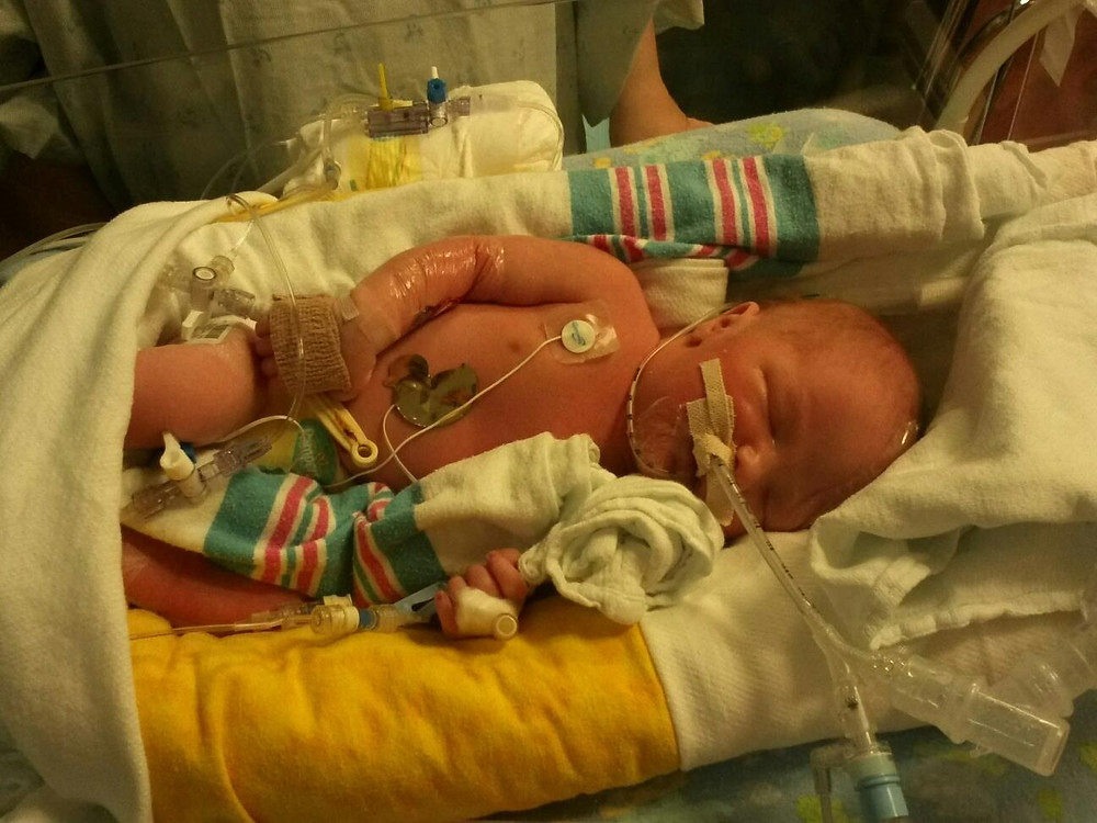 Andrew in the NICU