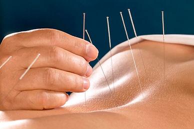 acupuncture treatment .jpg