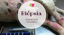 Quando a biópsia é necessária?