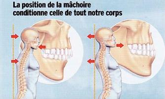 meilleur osteopathe paris 14